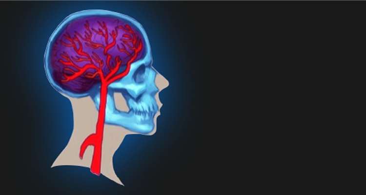 Making New Blood Vessels Helps Neuronal Recovery