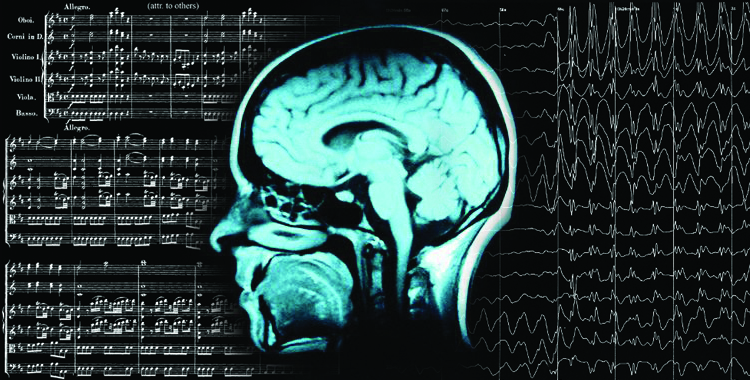 Epilepsy: The Brain's Cacophony