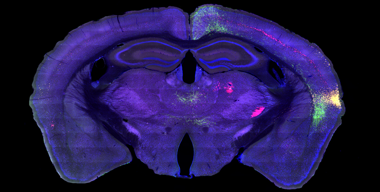 Mapping the Information Highway in the Brain