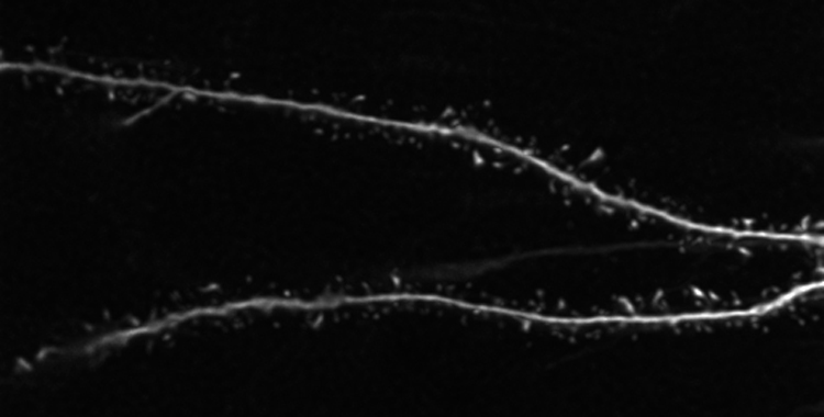 Dendritic Spines Knowing Neurons