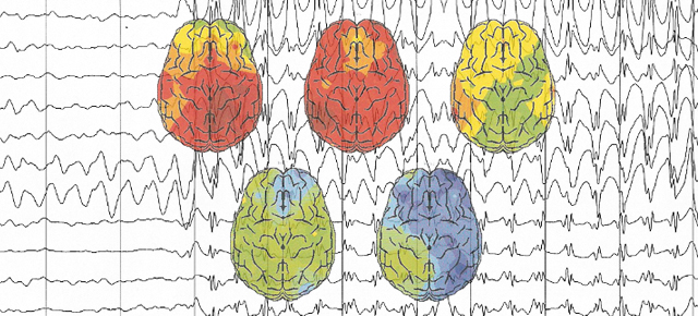 Surfing Brainwaves with EEG: A Classic Tool for Recording Temporal Brain Dynamics